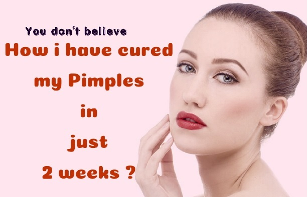 Pimples zaivoo